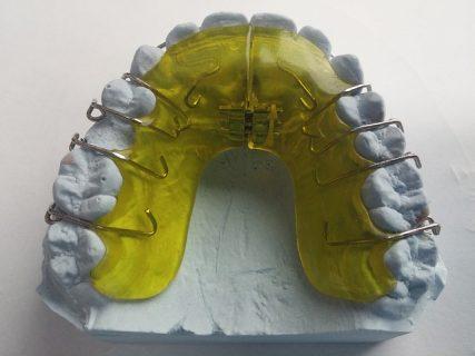 大人の歯科矯正~拡大装置開始~