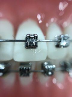 歯列矯正 ワイヤー交換2回目。